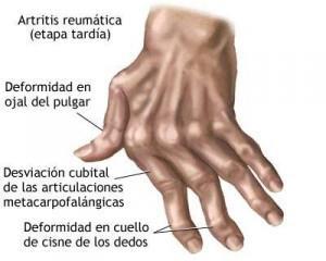Artritis reumática