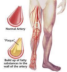 Placa arterial